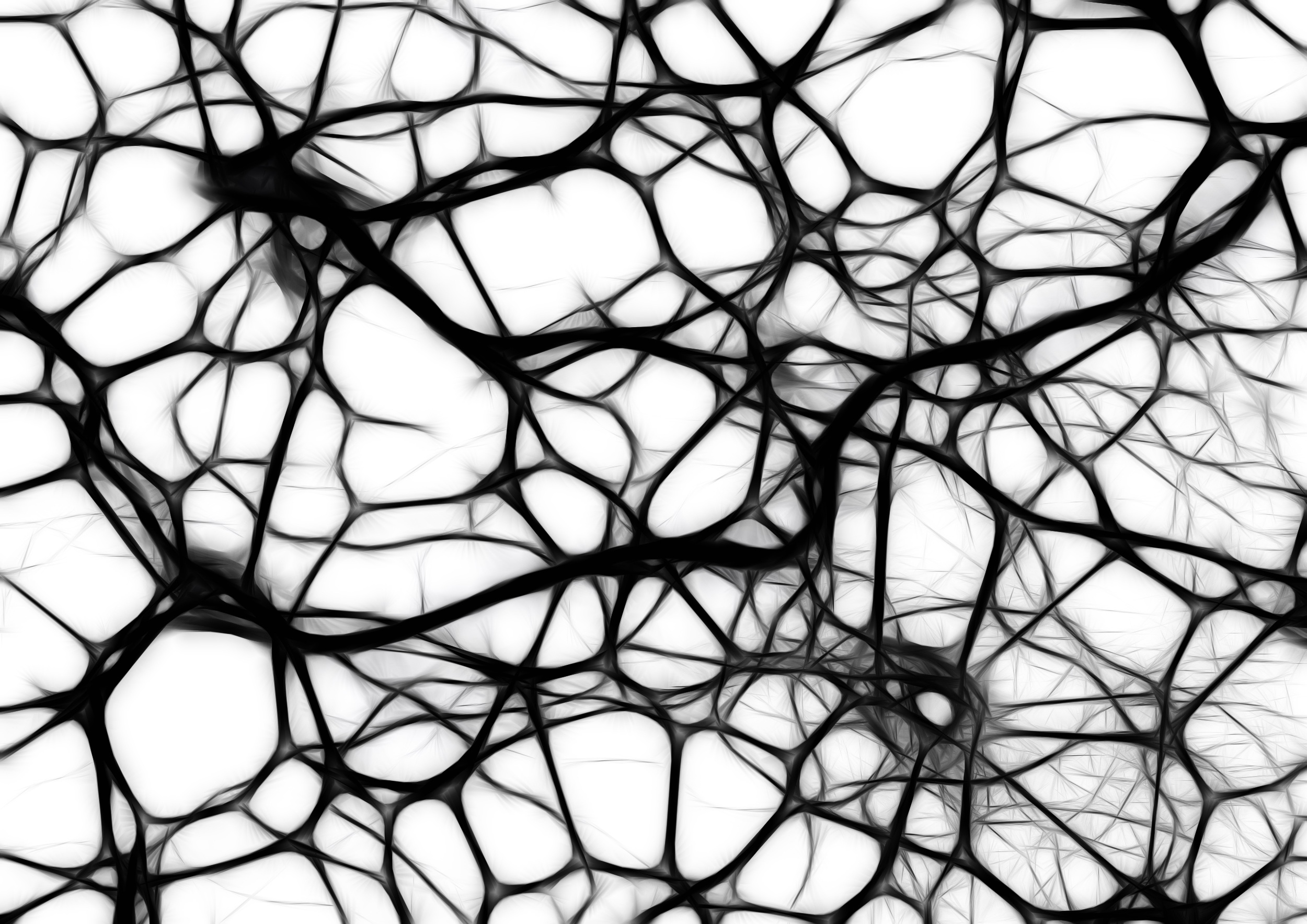 neurons - your brain on anxiety